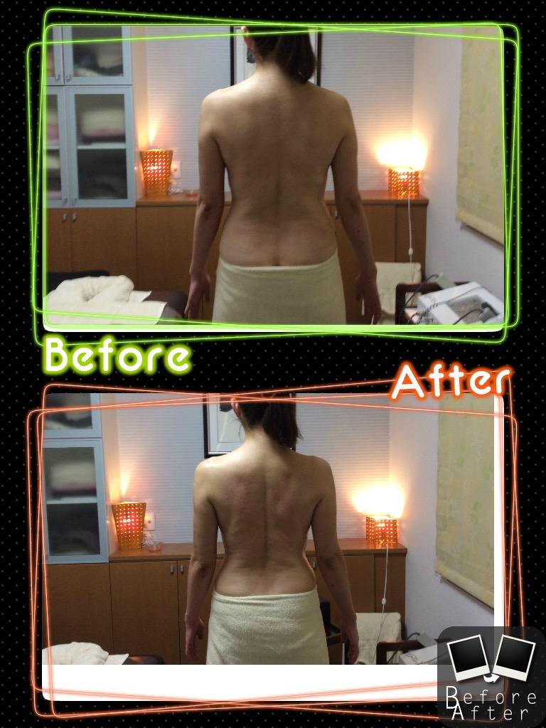 毒素排泄・痩身コース Before-After サンプルイメージ画像